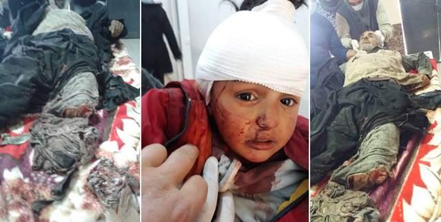 Photo of الاحتلال التركي يرتكب مجزرة مروعة بحق أهالي قرية خليل في راجو