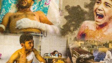 Photo of مثقفون عرب يدعون منظمة حظر الأسلحة الكيميائية للتحقيق العاجل في جرائم تركيا ضد الكُرد